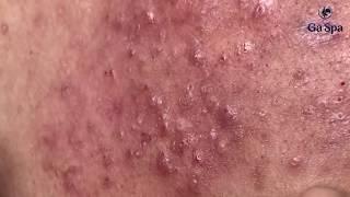 Treatment of two-year blackheads - Gà Spa