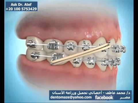 Ask Dr Atef تقويم الأسنان السريع Youtube