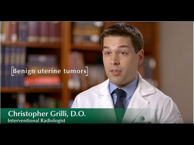 Treating Fibroid Tumors