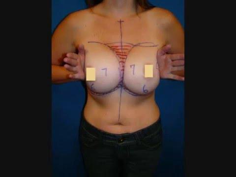 & Symmastia Revision Breast Surgery - YouTube
