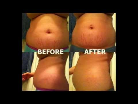 It Works Body Wraps: A SCAM or Does It Work? It Works Body Wrap Before & After photos
