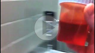 Coágulos causas sanguíneos urina de na