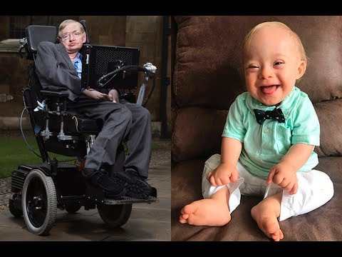 Life's Value: Stephen Hawking & Down Syndrome Abortions