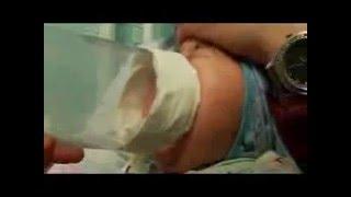 видео Обструктивный бронхит у детей