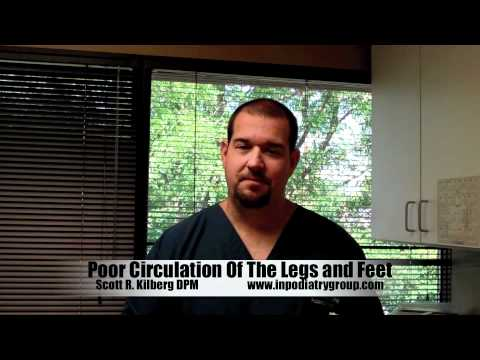 Poor Circulation Of The Legs and Feet