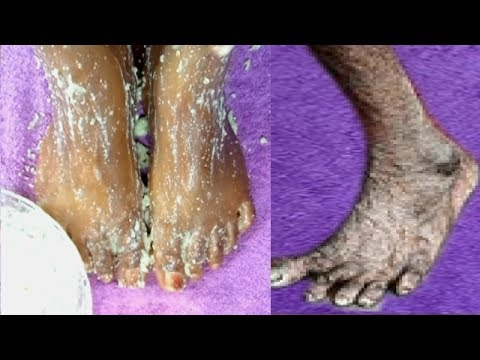 Thumbnail: HOW I REMOVE WRINKLES ON MY FEET IN 2 DAYS |GET RID OF DRY ROUGH LOOKING FEET