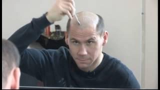 Bonding Part Ipl Przyklejanie Systemu Włosów HairAgain/SecondHair