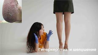 Гиперкератоз  и шелушение. О чем говорит наша кожа?