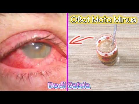 Minum JUS Ini,Mata Rabun,Mata Minus,Silinder Berhasil Sembuh Ga Pakai Kaca Mata Lagi