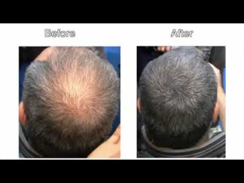 8 причин выпадения волос