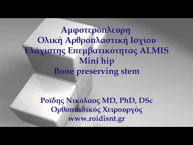 Αμφοτερόπλευρη Αρθροπλαστική Ισχίου ελάχιστης επεμβατικότητας - ALMIS - Δρ. Ν. Ροΐδης