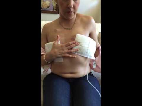 Bilateral Mastectomy - 2 weeks post op