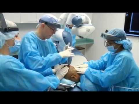 Robotic Hair Transplant: Graft Harvesting with ARTAS FUE System