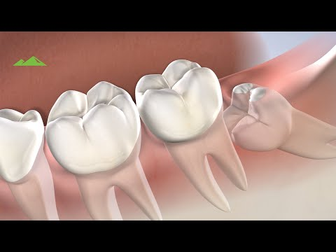 Post Operative Instructions Wisdom Teeth Removal Provo Ut Utah Surgical Arts Youtube