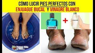 Cómo lucir pies perfectos con enjuague bucal y vinagre blanco