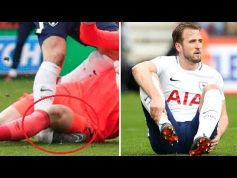 Spurs Confirm Harry Kane Injury, It's Bad News For Club And Country