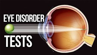 EYE DISORDER - Myopic, Hyperopia, Astigmatism TEST