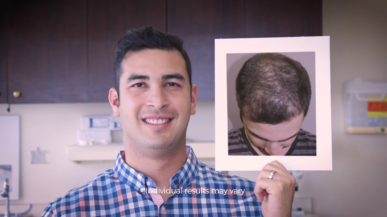 PRP Hair Treatment - TriGen+ : Bosley