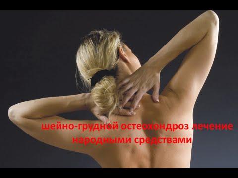 Аномалии шейного отдела: шейные ребра, аномалия Киммерле