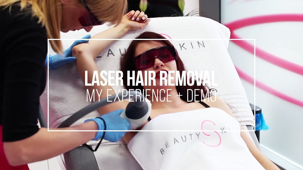 My vectus laser hair removal experience palomar vectus laser my vectus laser hair removal experience palomar vectus laser tutorial youtube solutioingenieria Choice Image