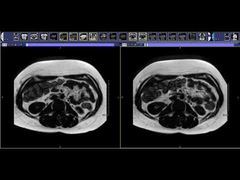 How To Read A Liver MRI