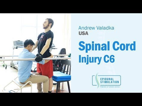Former American Football Player Andrew V., Back on His Feet After Suffering Spinal Cord Injury.