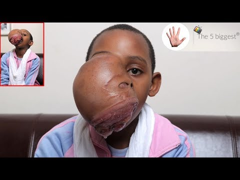 Worst face tumor after-surgery pictures will impress you! Story of little Triny's transformation!