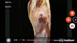 gastrocnemius/plantaris/popliteus muscles