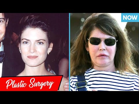 Worst Celebrity Plastic Surgery Disasters Then And Now