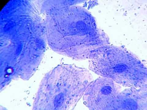 microscopy human cheek cells youtube Cheek Slide 400X microscopy human cheek cells