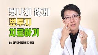 피부과 의사는 자기얼굴 뾰루지 어떻게 치료할까?