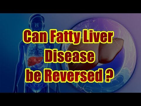 can-fatty-liver-disease-be-reversed?