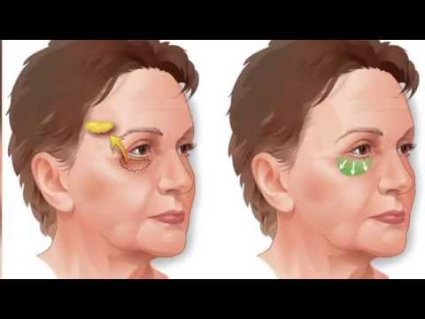 Perfecting the Face Lift: Plastic Surgery Hot Topics with Rod J. Rohrich, MD