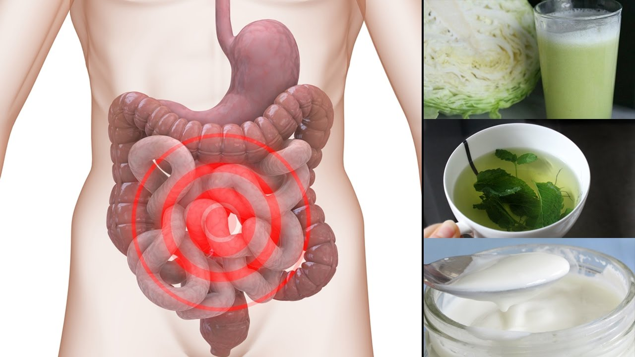 Irritable Bowel Syndrome Symptoms And Causes