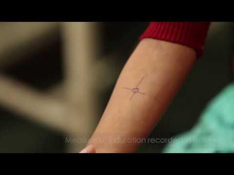 Training Video: Tuberculin Skin Testing
