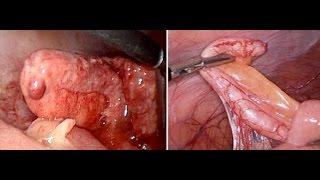 Abcès appendiculaire par coelioscopie