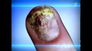 Грибок ногтей и как от него избавиться(Если у вас на ногтевых пластинках появилась желтизна или почернение, крошится или слоится ноготь, то вас..., 2016-04-07T19:21:52.000Z)