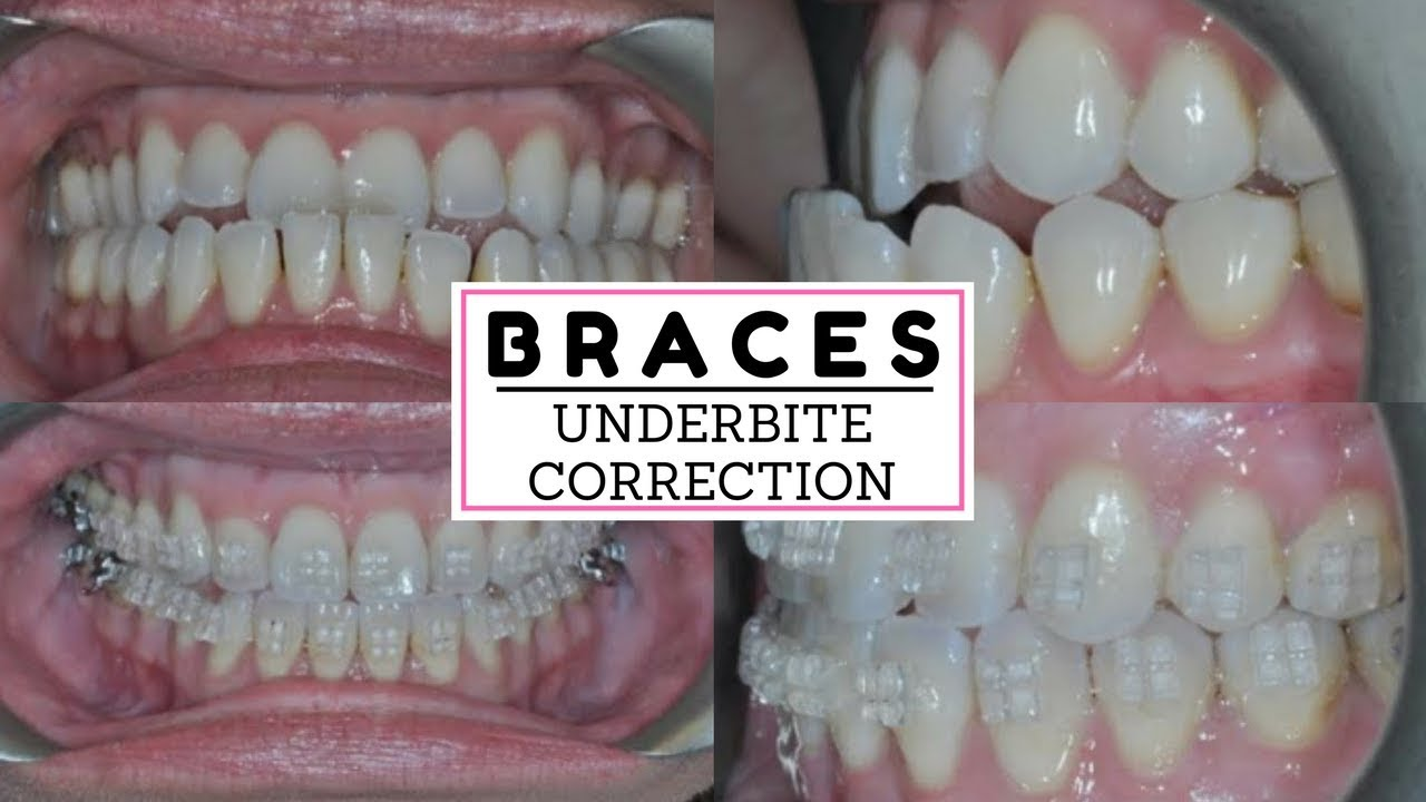 BRACES PROGRESS AFTER A YEAR! Adult braces correcting an underbite