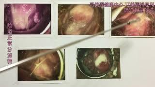 是女生都要知道:怎麼樣才算陰道正常分泌物?江美麗醫師告訴您!