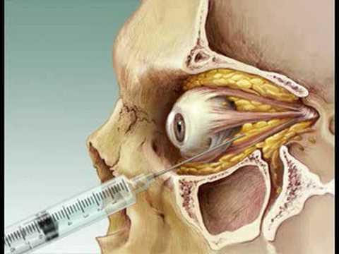 Retrobulbar Anesthesia Youtube