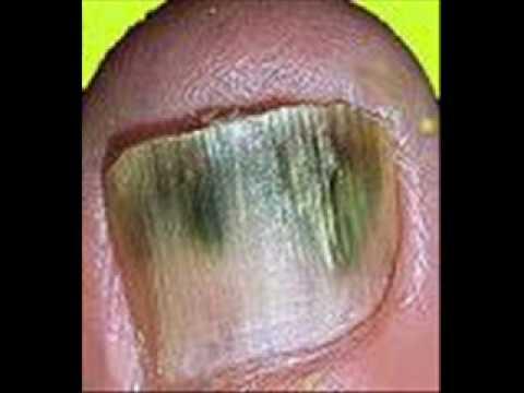 Manky Feet Nasty Toenail Fungus Pictures