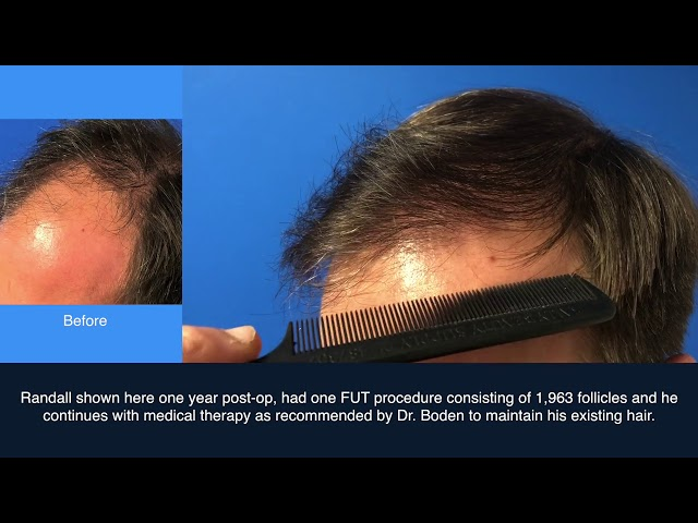 1900 Hair Graft FUT Case Study   Connecticut Hair Transplant