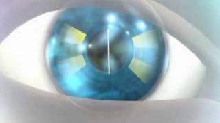 Acuvue Oasys Para Astigmatismo- zona de Estabilizacion Acelerada(como funciona el nuevo lentes para pacientes de astigmatismo, con el novedodos sistema de estabilizacion acelerada que usa los parpados para fijar el eje del ..., 2009-07-25T21:27:18.000Z)