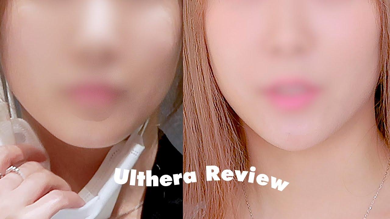 Ulthera Review | 울쎄라 3개월 차 400샷  | 가격 | 통증 | 부작용 | 다운타임 | 전후 | 선하