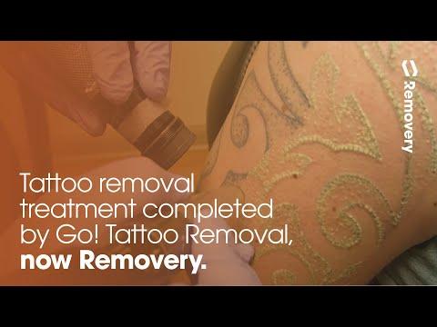 Laser Tattoo Removal On A Black & Grey Half Sleeve   Laser Tattoo ...
