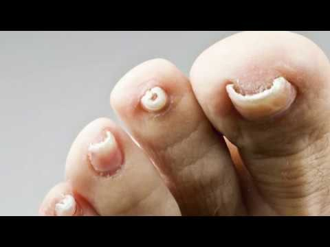 How Excilor Fungal Nail Treatment works | Now in UK