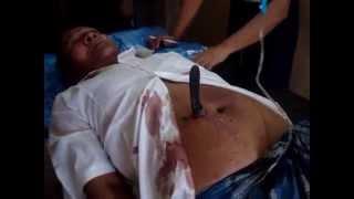 stab wound abdomen