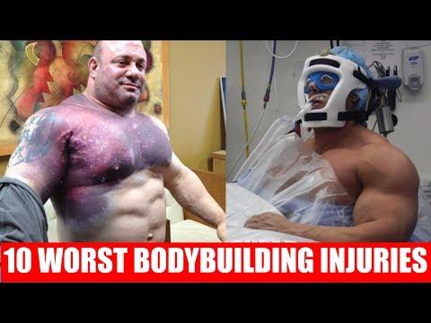 Top 10 Worst Bodybuilding Injuries Ever