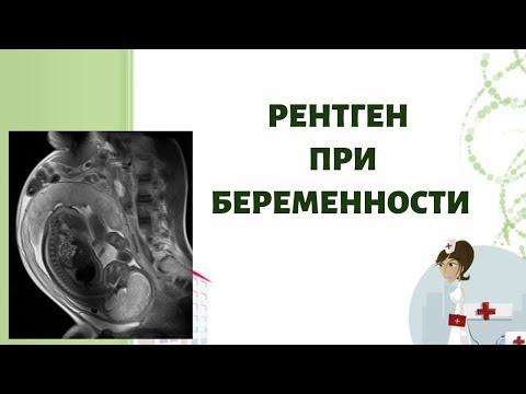 Рентген при беременности!!!!  Можезо ли рентген при беременности?Когда и зачем назначают рентген!