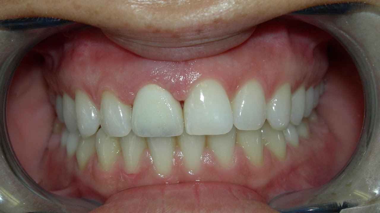 Los Angeles Cosmetic Dentist | Cost of Dental Porcelain Crowns